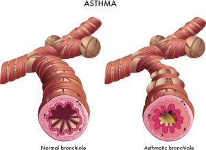 Asthmatic Bronchiole vs normal bronchiole