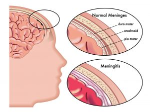 Diagram of Meningitis