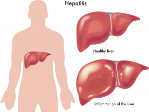 Inflamation of the liver